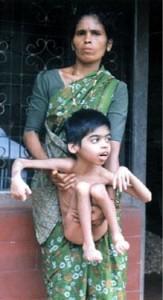 インドで農薬の被害に苦しむ子ども